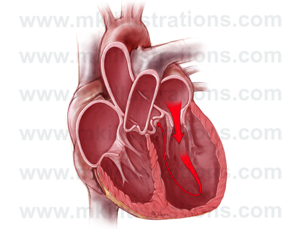 Dilated left ventricle
